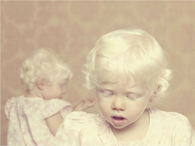 albinos-Gustavo-Lacerda-04.png