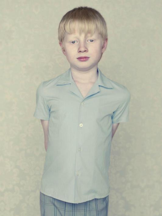 albinos-Gustavo-Lacerda-08.png
