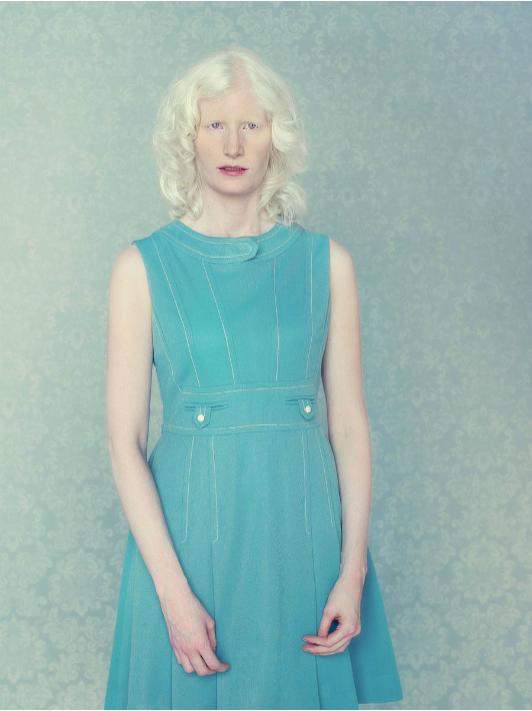 albinos-Gustavo-Lacerda-10.png