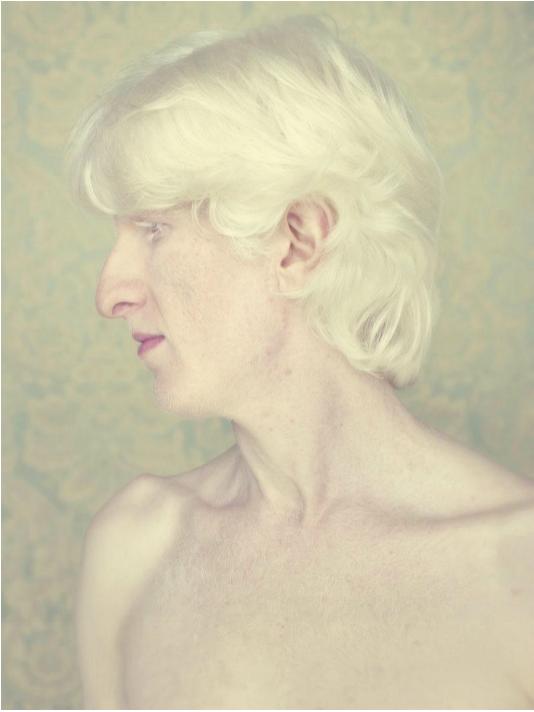 albinos-Gustavo-Lacerda-11.png