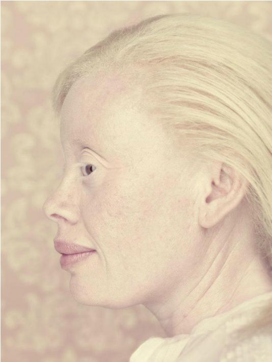 albinos-Gustavo-Lacerda-12.png