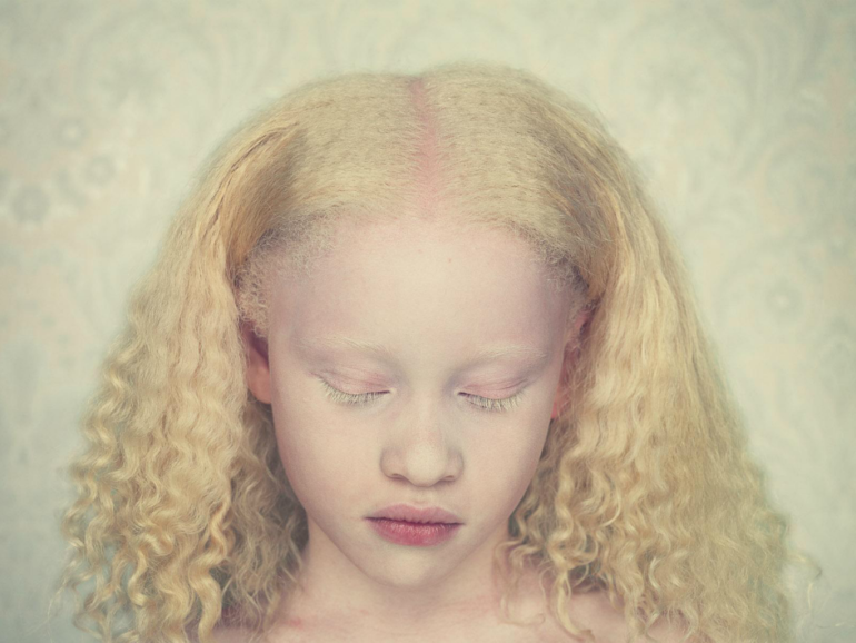 albinos-Gustavo-Lacerda-14.png
