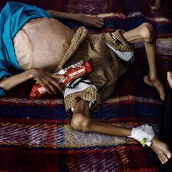 prix-pulitzer-2019-yemen-lorenzo-tugnoli-05-1000px