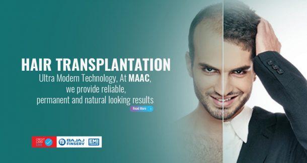 Best hair transplantation clinic in bangalore